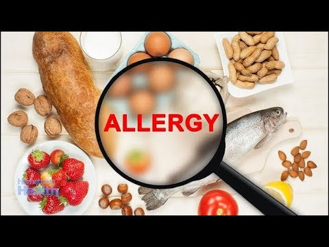 Holiday Food Allergies